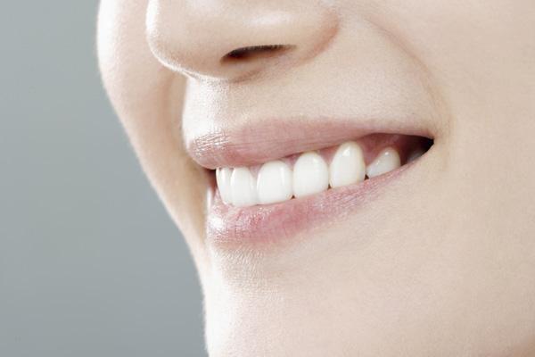 *小姐  牙齿缺失种植牙修复